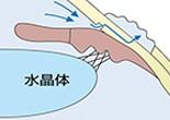 最後に強膜弁、結膜を縫合します。術後の房水の排出経路はこのようになります。