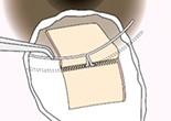 シュレム管の外壁を切除して、トラベクロトームを挿入します。