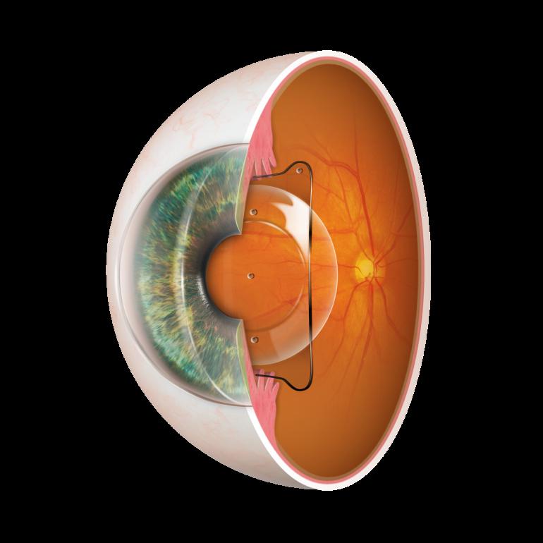 ICL (眼内コンタクトレンズ)の種類と特徴