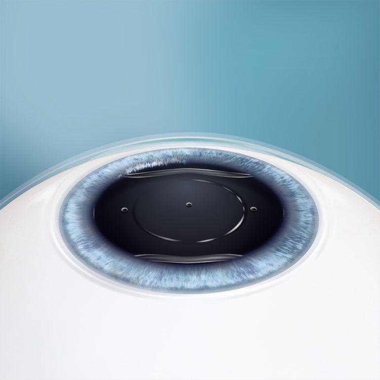 ICL(眼内コンタクトレンズ)の挿入