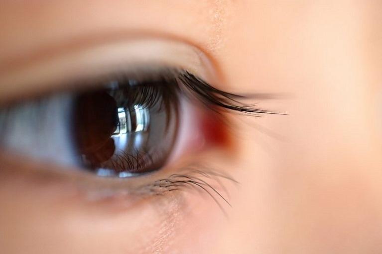 子供の近視の進行を抑える目薬(マイオピン:近視抑制治療)